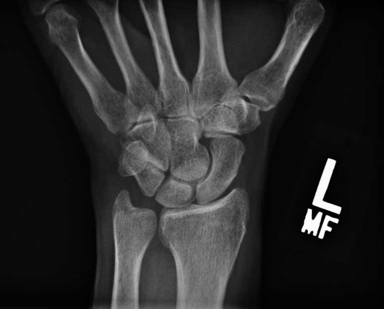 Navicular_bone